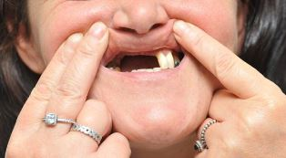smaller Woman with missing teeth