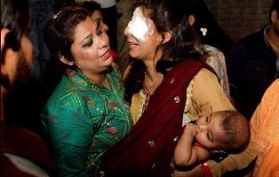 Smaller Injured Pakistani women with her child