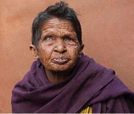 Woman with leprosy