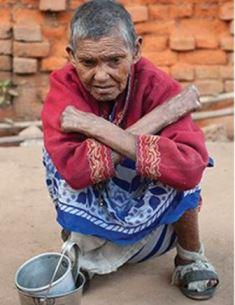 leprosy woman use