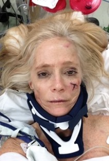 mary after accident