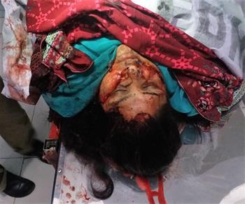 mi Body of Firdous Masih after attack in Quetta04 05 2018